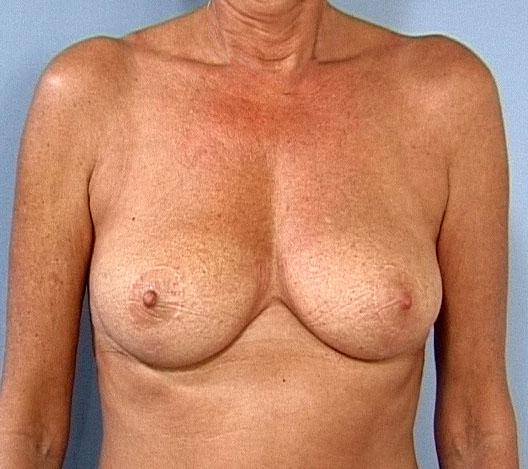 verdens største naturlige bryster pant låntager