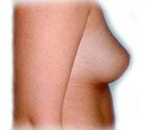 fedt kvinder ømme bryster amning