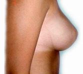 bryster efter amning fedt kvinder