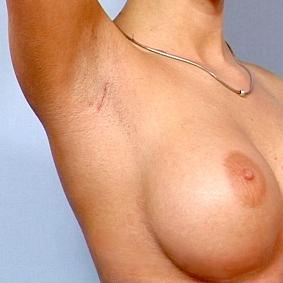 bh stor størrelse ingen bryster