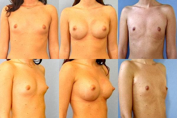 slappe bryster hvordan man får større bryster