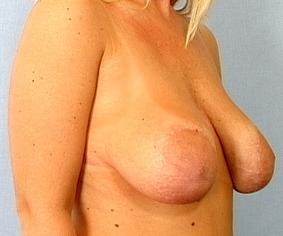 hvorfor kommer til ømme bryster før folk