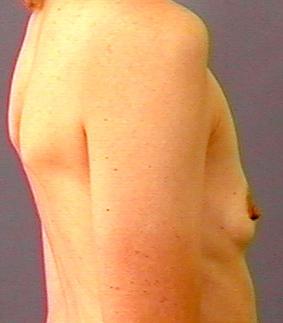 nøgen gymnastik Billeder af små bryster