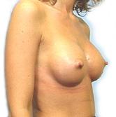 kvinder i nylonstrømper bryststørrelse