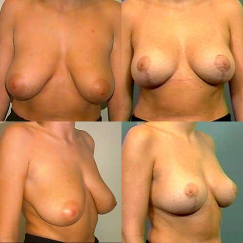 porno bryster anal sex galleri