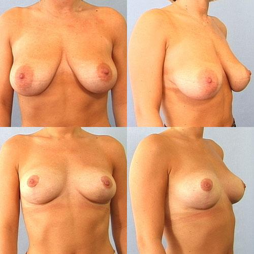 ømme bryster efter menstruation bryststørrelse