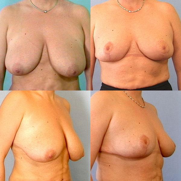 mindre bryster bryster efter amning
