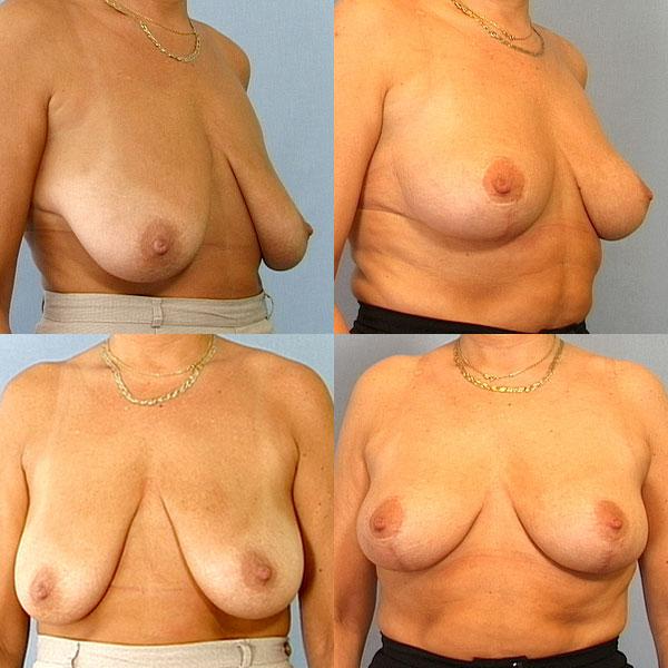 bryster efter amning mindre bryster