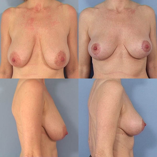 porno film gratis mindre bryster