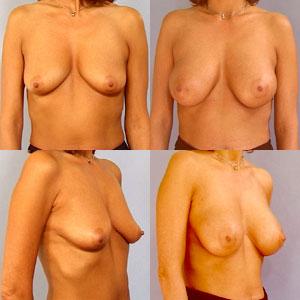 kvinder i nylonstrømper sende bryster