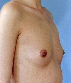 nøgenbilleder i naturen få større bryster