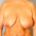 bryster efter graviditet shemale aarhus