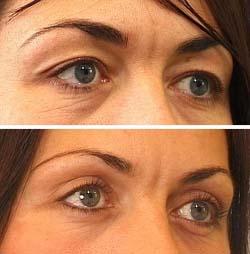 operation af øjenlåg