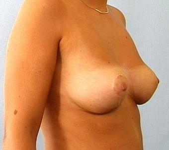 Thai massage gladsaxe større bryster